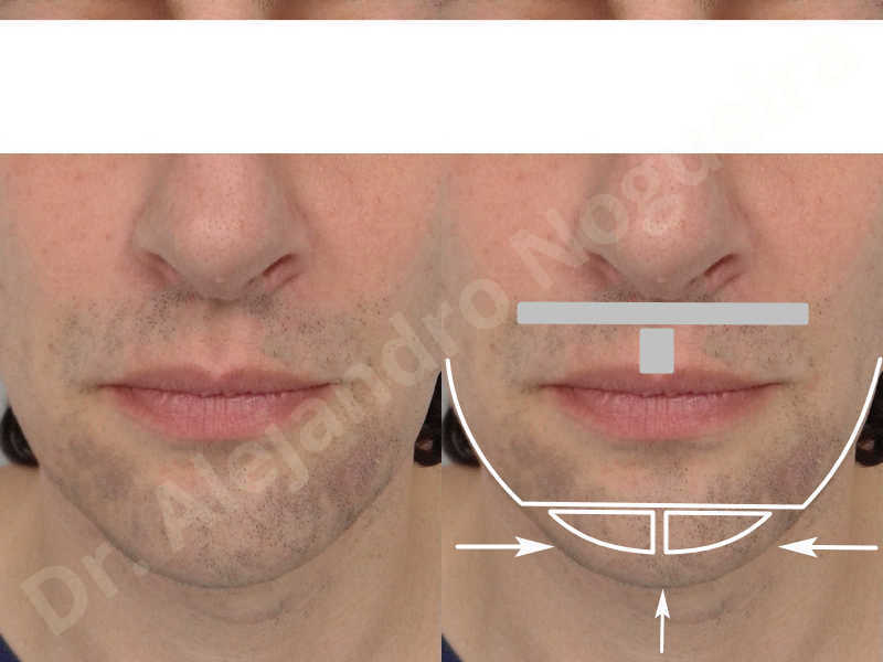 Large chin,Transgender chin,Horizontal osseous chin resection,Oblique chin osteotomy,Osseous chin setback,Three dimensional genioplasty,Vertical osseous chin resection - photo 1