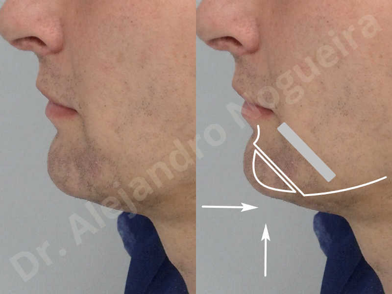 Large chin,Transgender chin,Horizontal osseous chin resection,Oblique chin osteotomy,Osseous chin setback,Three dimensional genioplasty,Vertical osseous chin resection - photo 2