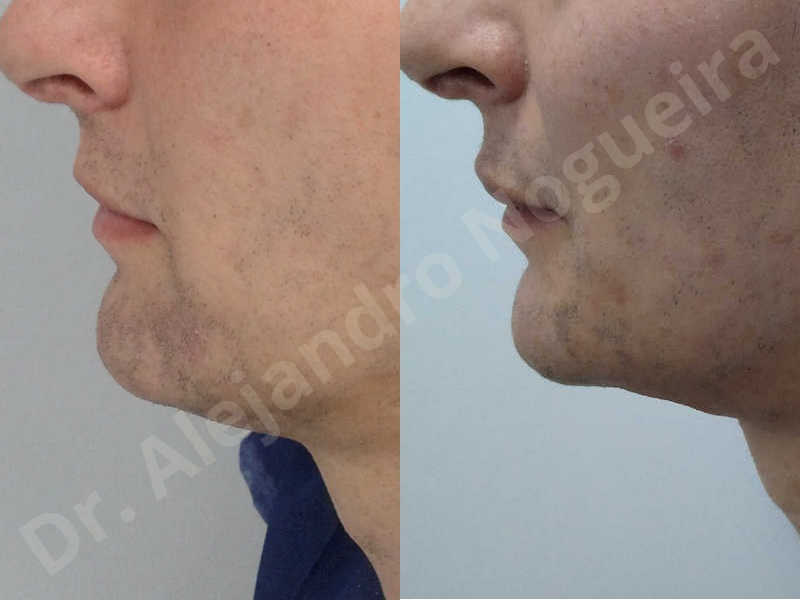 Large chin,Transgender chin,Horizontal osseous chin resection,Oblique chin osteotomy,Osseous chin setback,Three dimensional genioplasty,Vertical osseous chin resection - photo 27