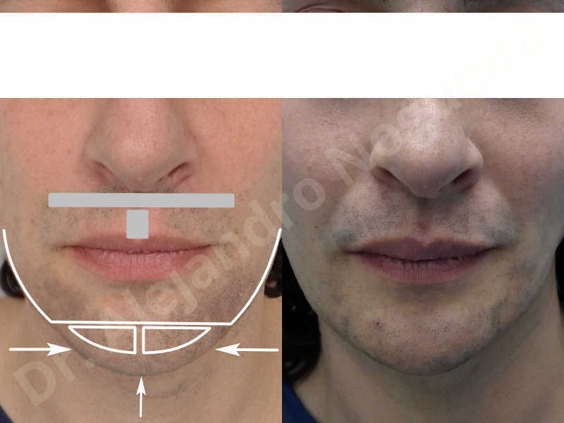 Large chin,Transgender chin,Horizontal osseous chin resection,Oblique chin osteotomy,Osseous chin setback,Three dimensional genioplasty,Vertical osseous chin resection - photo 28