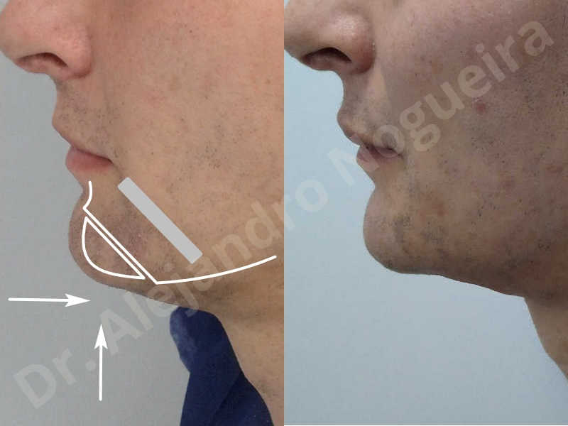 Large chin,Transgender chin,Horizontal osseous chin resection,Oblique chin osteotomy,Osseous chin setback,Three dimensional genioplasty,Vertical osseous chin resection - photo 29
