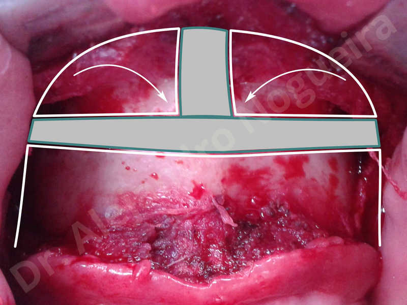 Large chin,Transgender chin,Horizontal osseous chin resection,Oblique chin osteotomy,Osseous chin setback,Three dimensional genioplasty,Vertical osseous chin resection - photo 6