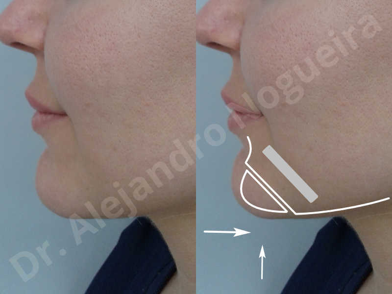 Large chin,Prominent chin,Horizontal osseous chin resection,Oblique chin osteotomy,Osseous chin setback,Three dimensional genioplasty,Vertical osseous chin resection - photo 2