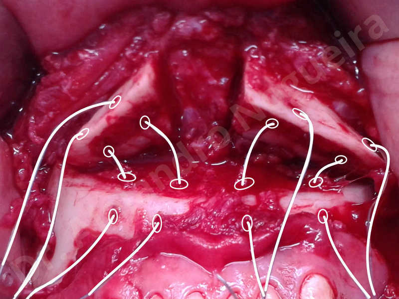 Large chin,Prominent chin,Horizontal osseous chin resection,Oblique chin osteotomy,Osseous chin setback,Three dimensional genioplasty,Vertical osseous chin resection - photo 23