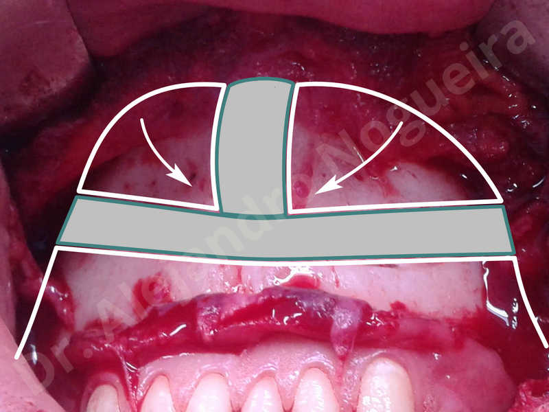 Large chin,Prominent chin,Horizontal osseous chin resection,Oblique chin osteotomy,Osseous chin setback,Three dimensional genioplasty,Vertical osseous chin resection - photo 6
