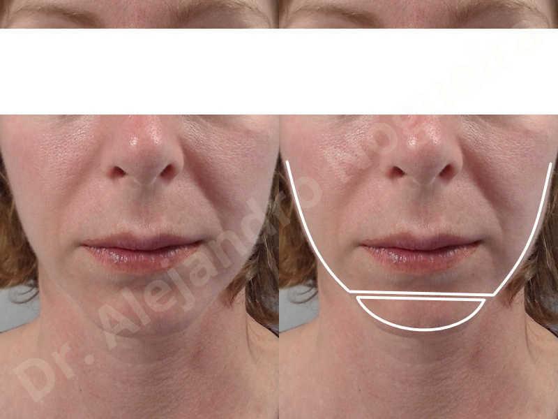 Small chin,Weak chin,Horizontal chin osteotomy,One dimensional genioplasty,Osseous chin advancement - photo 1