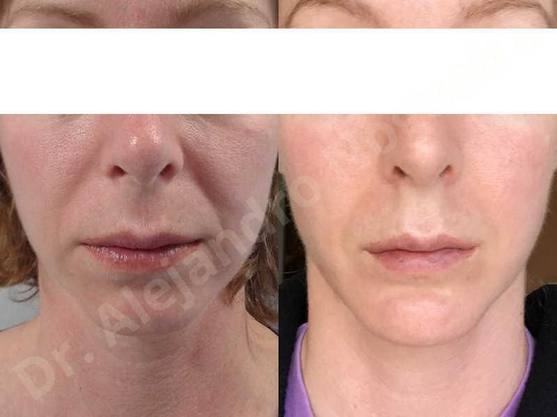 Small chin,Weak chin,Horizontal chin osteotomy,One dimensional genioplasty,Osseous chin advancement - photo 13
