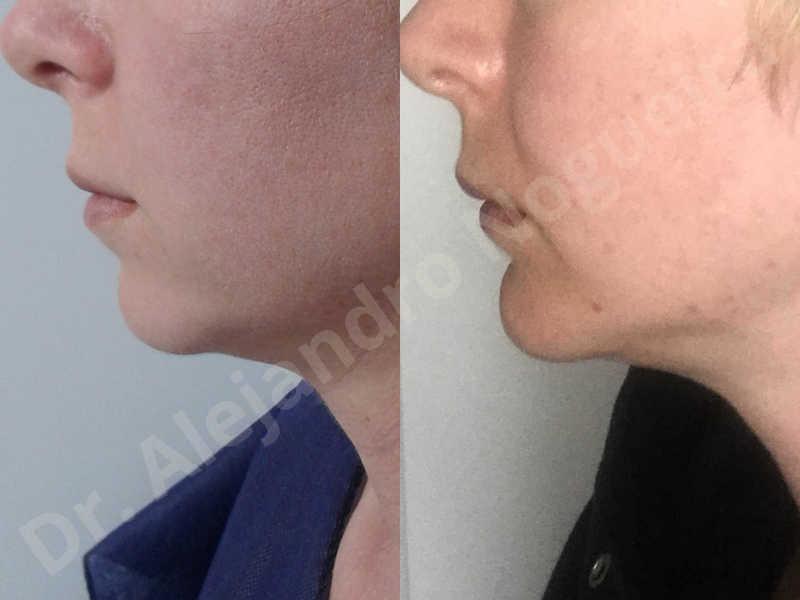Small chin,Weak chin,Horizontal chin osteotomy,One dimensional genioplasty,Osseous chin advancement - photo 14