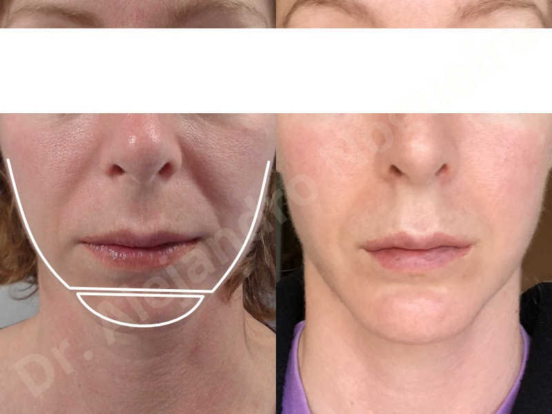 Small chin,Weak chin,Horizontal chin osteotomy,One dimensional genioplasty,Osseous chin advancement - photo 15