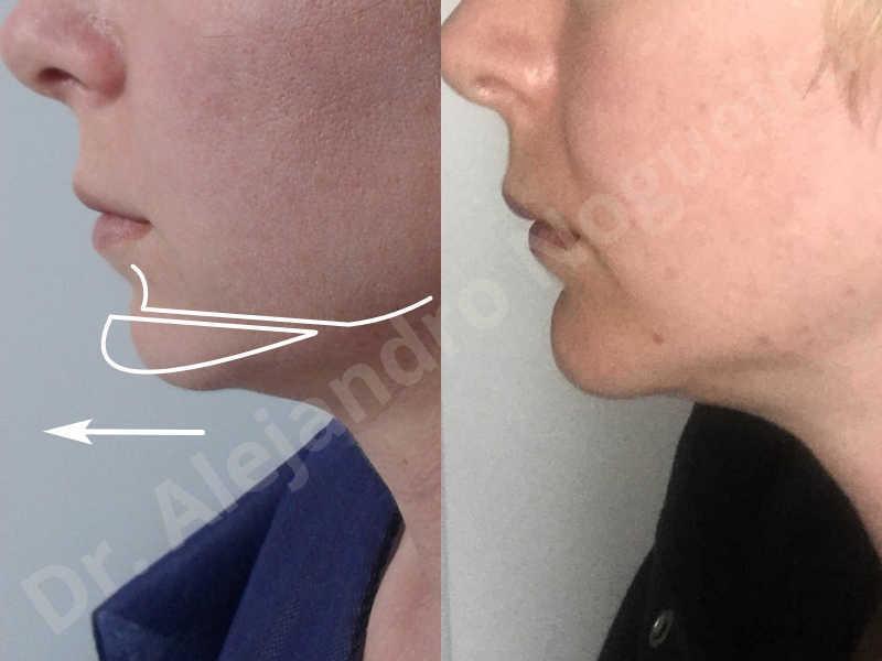 Small chin,Weak chin,Horizontal chin osteotomy,One dimensional genioplasty,Osseous chin advancement - photo 16