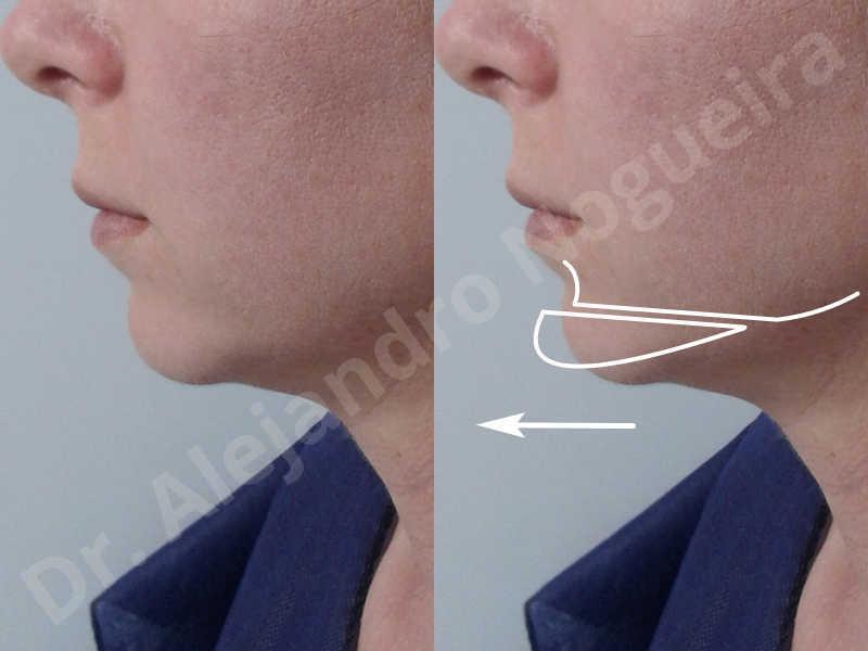 Small chin,Weak chin,Horizontal chin osteotomy,One dimensional genioplasty,Osseous chin advancement - photo 2