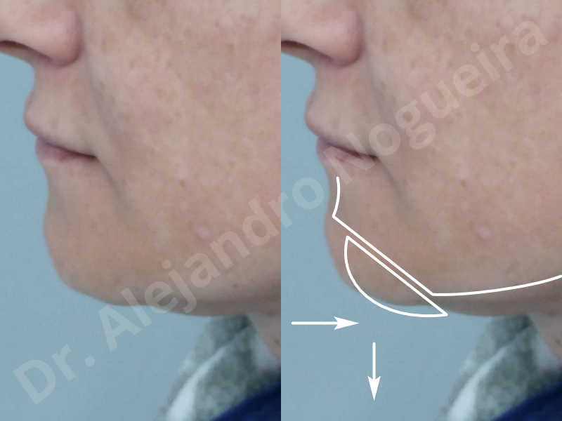 Large chin,Prominent chin,Small chin,Transgender chin,Weak chin,Horizontal osseous chin resection,Oblique chin osteotomy,Osseous chin setback,Three dimensional genioplasty - photo 2