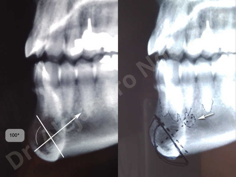 Large chin,Prominent chin,Small chin,Transgender chin,Weak chin,Horizontal osseous chin resection,Oblique chin osteotomy,Osseous chin setback,Three dimensional genioplasty - photo 4