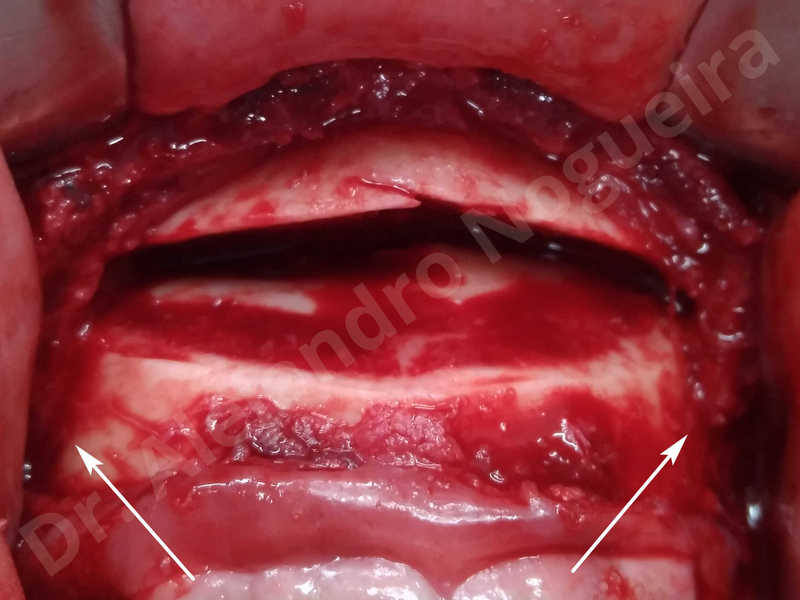Large chin,Prominent chin,Small chin,Transgender chin,Weak chin,Horizontal osseous chin resection,Oblique chin osteotomy,Osseous chin setback,Three dimensional genioplasty - photo 8