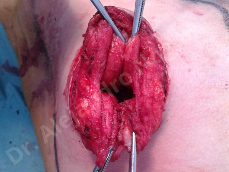 Empty breasts,Large areolas,Lateral breasts,Small breasts,Too far apart wide cleavage breasts,Tuberous breasts,Anatomical shape,Areola reduction,Circumareolar incision,Subfascial pocket plane,Tuberous mammoplasty - photo 10