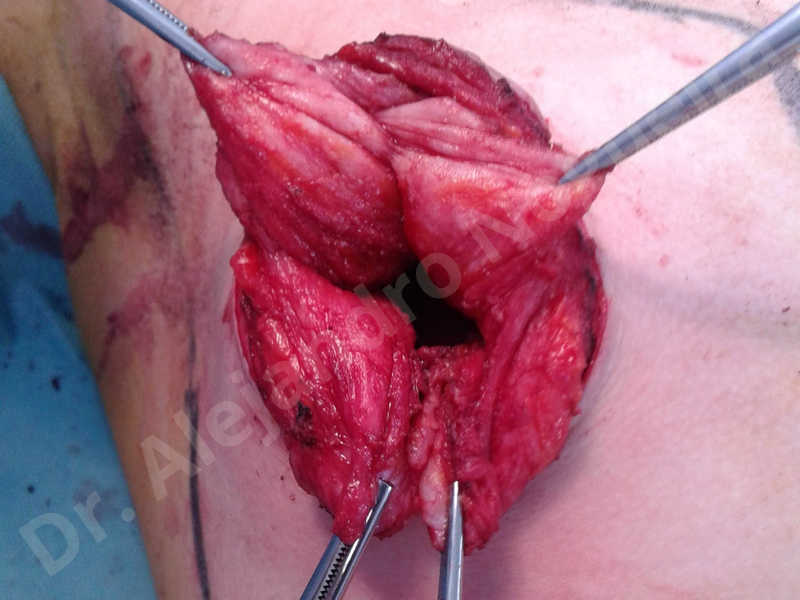 Empty breasts,Large areolas,Lateral breasts,Small breasts,Too far apart wide cleavage breasts,Tuberous breasts,Anatomical shape,Areola reduction,Circumareolar incision,Subfascial pocket plane,Tuberous mammoplasty - photo 12