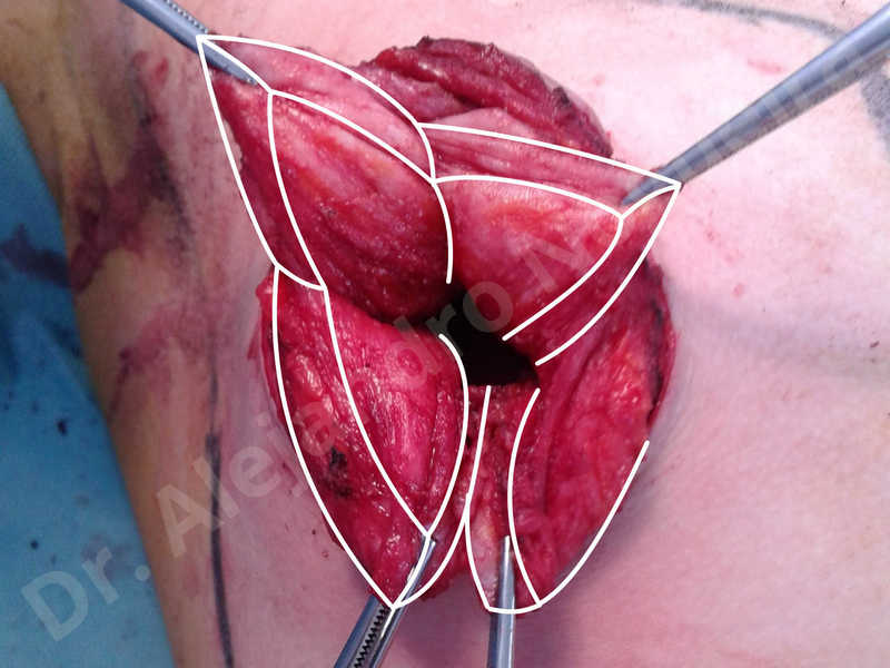 Empty breasts,Large areolas,Lateral breasts,Small breasts,Too far apart wide cleavage breasts,Tuberous breasts,Anatomical shape,Areola reduction,Circumareolar incision,Subfascial pocket plane,Tuberous mammoplasty - photo 13