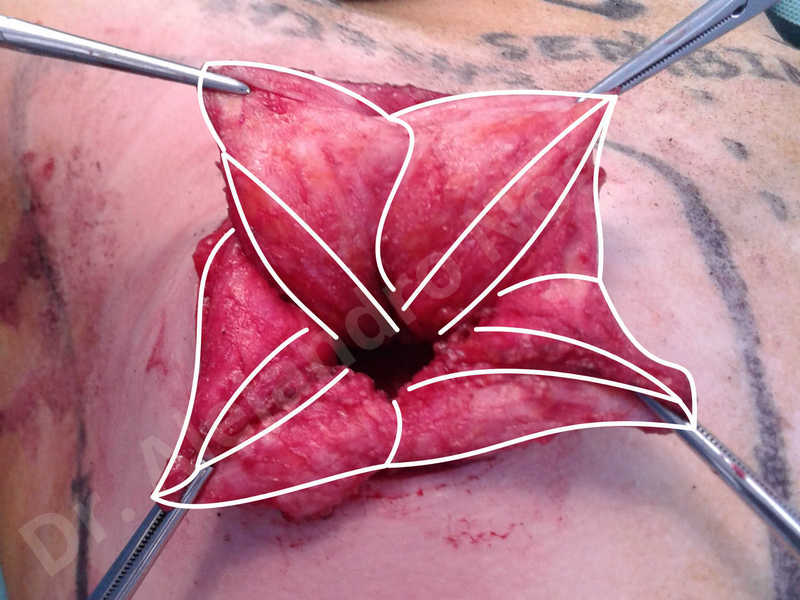 Empty breasts,Large areolas,Lateral breasts,Small breasts,Too far apart wide cleavage breasts,Tuberous breasts,Anatomical shape,Areola reduction,Circumareolar incision,Subfascial pocket plane,Tuberous mammoplasty - photo 27
