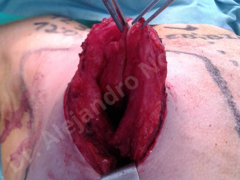 Empty breasts,Large areolas,Lateral breasts,Small breasts,Too far apart wide cleavage breasts,Tuberous breasts,Anatomical shape,Areola reduction,Circumareolar incision,Subfascial pocket plane,Tuberous mammoplasty - photo 28