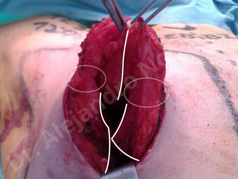 Empty breasts,Large areolas,Lateral breasts,Small breasts,Too far apart wide cleavage breasts,Tuberous breasts,Anatomical shape,Areola reduction,Circumareolar incision,Subfascial pocket plane,Tuberous mammoplasty - photo 29