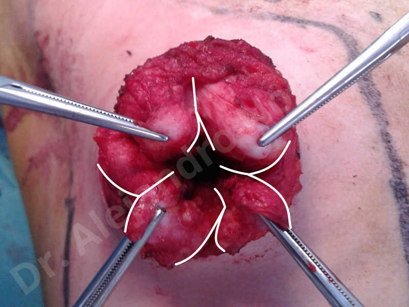 Empty breasts,Large areolas,Lateral breasts,Small breasts,Too far apart wide cleavage breasts,Tuberous breasts,Anatomical shape,Areola reduction,Circumareolar incision,Subfascial pocket plane,Tuberous mammoplasty - photo 6