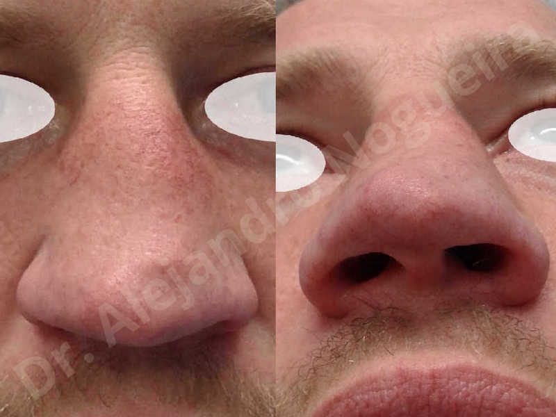 Alar flaring,Alar rim retraction,Asymmetric nose,Asymmetric tip,Bifid columella,Bifid tip,Broad dorsum,Broad nose,Concave lateral cruras,Congenital nose,Crooked nose,Crooked septum,Crooked tip,Dorsum hump,Dorsum ridges,Droopy tip,Failed osteotomies,Flat dorsum,Irregular dorsum,Large alar cartilages,Large nose,Large nostrils,Large sills,Nasal fibrosis,Nasal valve collapse,Overprojected tip,Pinched middle vault,Pinched nose,Plunging tip deformity,Poorly defined tip,Poorly supported tip,Posttraumatic nose,Rhomboid dorsum,Saddle nose deformity,Short septum,Short upper lateral cartilages,Sunken columella,Sunken supratip,Thick skin nose,Tip bossae,Underprojected tip,Alar base resection alarplasty,Columella strut graft,Dorsum hump resection,Dorsum regularization,Extended columella strut graft,Intercrural columella plasty sutures,Interdomal tip plasty sutures,Lateral cruras cephalic resection,Lateral cruras plasty sutures,Lateral cruras repositioning,Lateral cruras shortening resection,Medial cruras shortening resection,Nasal bones osteotomies,Nostril sill resection,Onlay dorsum graft,Onlay supratip graft,Open approach incision,Rib cartilage graft harvesting,Septocolumella graft,Septum caudal extension graft,Septum replacement graft,Spreader graft,Temporalis fascia graft harvesting,Tip defatting,Transdomal tip plasty sutures,Triangular cartilages caudal extension graft - photo 1