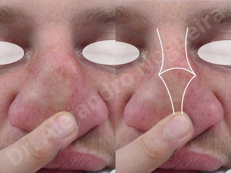 Alar flaring,Alar rim retraction,Asymmetric nose,Asymmetric tip,Bifid columella,Bifid tip,Broad dorsum,Broad nose,Concave lateral cruras,Congenital nose,Crooked nose,Crooked septum,Crooked tip,Dorsum hump,Dorsum ridges,Droopy tip,Failed osteotomies,Flat dorsum,Irregular dorsum,Large alar cartilages,Large nose,Large nostrils,Large sills,Nasal fibrosis,Nasal valve collapse,Overprojected tip,Pinched middle vault,Pinched nose,Plunging tip deformity,Poorly defined tip,Poorly supported tip,Posttraumatic nose,Rhomboid dorsum,Saddle nose deformity,Short septum,Short upper lateral cartilages,Sunken columella,Sunken supratip,Thick skin nose,Tip bossae,Underprojected tip,Alar base resection alarplasty,Columella strut graft,Dorsum hump resection,Dorsum regularization,Extended columella strut graft,Intercrural columella plasty sutures,Interdomal tip plasty sutures,Lateral cruras cephalic resection,Lateral cruras plasty sutures,Lateral cruras repositioning,Lateral cruras shortening resection,Medial cruras shortening resection,Nasal bones osteotomies,Nostril sill resection,Onlay dorsum graft,Onlay supratip graft,Open approach incision,Rib cartilage graft harvesting,Septocolumella graft,Septum caudal extension graft,Septum replacement graft,Spreader graft,Temporalis fascia graft harvesting,Tip defatting,Transdomal tip plasty sutures,Triangular cartilages caudal extension graft - photo 10