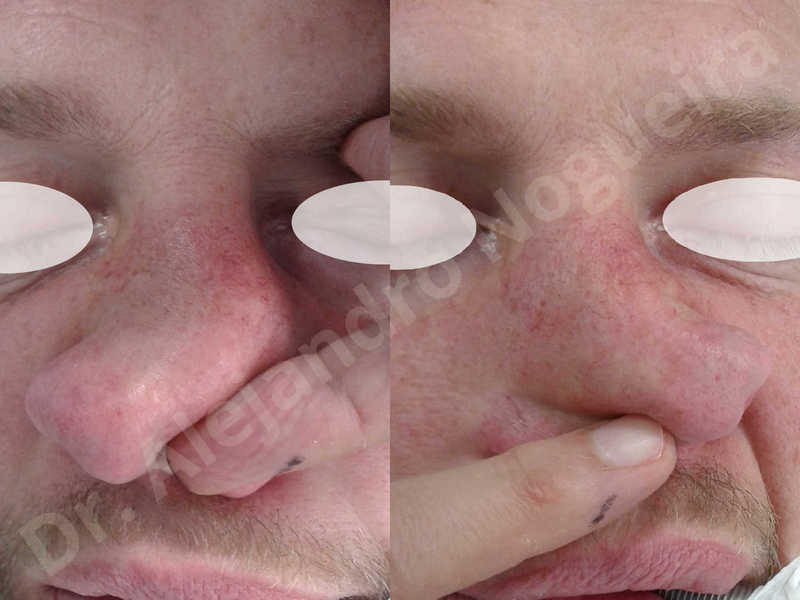 Alar flaring,Alar rim retraction,Asymmetric nose,Asymmetric tip,Bifid columella,Bifid tip,Broad dorsum,Broad nose,Concave lateral cruras,Congenital nose,Crooked nose,Crooked septum,Crooked tip,Dorsum hump,Dorsum ridges,Droopy tip,Failed osteotomies,Flat dorsum,Irregular dorsum,Large alar cartilages,Large nose,Large nostrils,Large sills,Nasal fibrosis,Nasal valve collapse,Overprojected tip,Pinched middle vault,Pinched nose,Plunging tip deformity,Poorly defined tip,Poorly supported tip,Posttraumatic nose,Rhomboid dorsum,Saddle nose deformity,Short septum,Short upper lateral cartilages,Sunken columella,Sunken supratip,Thick skin nose,Tip bossae,Underprojected tip,Alar base resection alarplasty,Columella strut graft,Dorsum hump resection,Dorsum regularization,Extended columella strut graft,Intercrural columella plasty sutures,Interdomal tip plasty sutures,Lateral cruras cephalic resection,Lateral cruras plasty sutures,Lateral cruras repositioning,Lateral cruras shortening resection,Medial cruras shortening resection,Nasal bones osteotomies,Nostril sill resection,Onlay dorsum graft,Onlay supratip graft,Open approach incision,Rib cartilage graft harvesting,Septocolumella graft,Septum caudal extension graft,Septum replacement graft,Spreader graft,Temporalis fascia graft harvesting,Tip defatting,Transdomal tip plasty sutures,Triangular cartilages caudal extension graft - photo 12