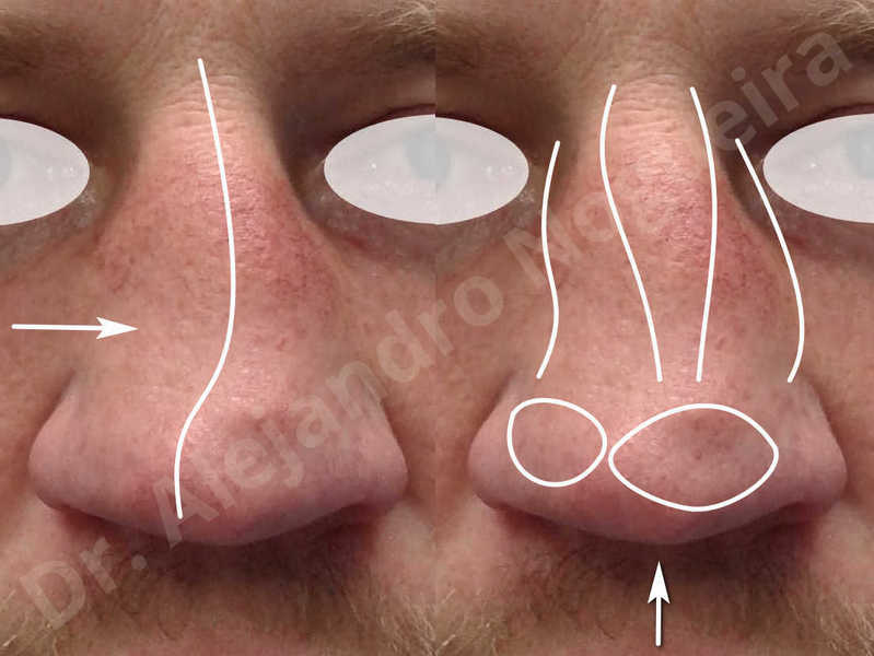 Alar flaring,Alar rim retraction,Asymmetric nose,Asymmetric tip,Bifid columella,Bifid tip,Broad dorsum,Broad nose,Concave lateral cruras,Congenital nose,Crooked nose,Crooked septum,Crooked tip,Dorsum hump,Dorsum ridges,Droopy tip,Failed osteotomies,Flat dorsum,Irregular dorsum,Large alar cartilages,Large nose,Large nostrils,Large sills,Nasal fibrosis,Nasal valve collapse,Overprojected tip,Pinched middle vault,Pinched nose,Plunging tip deformity,Poorly defined tip,Poorly supported tip,Posttraumatic nose,Rhomboid dorsum,Saddle nose deformity,Short septum,Short upper lateral cartilages,Sunken columella,Sunken supratip,Thick skin nose,Tip bossae,Underprojected tip,Alar base resection alarplasty,Columella strut graft,Dorsum hump resection,Dorsum regularization,Extended columella strut graft,Intercrural columella plasty sutures,Interdomal tip plasty sutures,Lateral cruras cephalic resection,Lateral cruras plasty sutures,Lateral cruras repositioning,Lateral cruras shortening resection,Medial cruras shortening resection,Nasal bones osteotomies,Nostril sill resection,Onlay dorsum graft,Onlay supratip graft,Open approach incision,Rib cartilage graft harvesting,Septocolumella graft,Septum caudal extension graft,Septum replacement graft,Spreader graft,Temporalis fascia graft harvesting,Tip defatting,Transdomal tip plasty sutures,Triangular cartilages caudal extension graft - photo 2