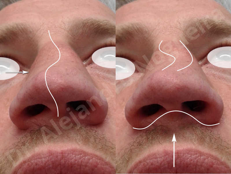 Alar flaring,Alar rim retraction,Asymmetric nose,Asymmetric tip,Bifid columella,Bifid tip,Broad dorsum,Broad nose,Concave lateral cruras,Congenital nose,Crooked nose,Crooked septum,Crooked tip,Dorsum hump,Dorsum ridges,Droopy tip,Failed osteotomies,Flat dorsum,Irregular dorsum,Large alar cartilages,Large nose,Large nostrils,Large sills,Nasal fibrosis,Nasal valve collapse,Overprojected tip,Pinched middle vault,Pinched nose,Plunging tip deformity,Poorly defined tip,Poorly supported tip,Posttraumatic nose,Rhomboid dorsum,Saddle nose deformity,Short septum,Short upper lateral cartilages,Sunken columella,Sunken supratip,Thick skin nose,Tip bossae,Underprojected tip,Alar base resection alarplasty,Columella strut graft,Dorsum hump resection,Dorsum regularization,Extended columella strut graft,Intercrural columella plasty sutures,Interdomal tip plasty sutures,Lateral cruras cephalic resection,Lateral cruras plasty sutures,Lateral cruras repositioning,Lateral cruras shortening resection,Medial cruras shortening resection,Nasal bones osteotomies,Nostril sill resection,Onlay dorsum graft,Onlay supratip graft,Open approach incision,Rib cartilage graft harvesting,Septocolumella graft,Septum caudal extension graft,Septum replacement graft,Spreader graft,Temporalis fascia graft harvesting,Tip defatting,Transdomal tip plasty sutures,Triangular cartilages caudal extension graft - photo 3