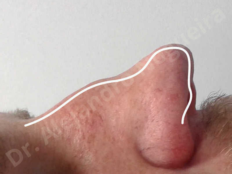 Alar flaring,Alar rim retraction,Asymmetric nose,Asymmetric tip,Bifid columella,Bifid tip,Broad dorsum,Broad nose,Concave lateral cruras,Congenital nose,Crooked nose,Crooked septum,Crooked tip,Dorsum hump,Dorsum ridges,Droopy tip,Failed osteotomies,Flat dorsum,Irregular dorsum,Large alar cartilages,Large nose,Large nostrils,Large sills,Nasal fibrosis,Nasal valve collapse,Overprojected tip,Pinched middle vault,Pinched nose,Plunging tip deformity,Poorly defined tip,Poorly supported tip,Posttraumatic nose,Rhomboid dorsum,Saddle nose deformity,Short septum,Short upper lateral cartilages,Sunken columella,Sunken supratip,Thick skin nose,Tip bossae,Underprojected tip,Alar base resection alarplasty,Columella strut graft,Dorsum hump resection,Dorsum regularization,Extended columella strut graft,Intercrural columella plasty sutures,Interdomal tip plasty sutures,Lateral cruras cephalic resection,Lateral cruras plasty sutures,Lateral cruras repositioning,Lateral cruras shortening resection,Medial cruras shortening resection,Nasal bones osteotomies,Nostril sill resection,Onlay dorsum graft,Onlay supratip graft,Open approach incision,Rib cartilage graft harvesting,Septocolumella graft,Septum caudal extension graft,Septum replacement graft,Spreader graft,Temporalis fascia graft harvesting,Tip defatting,Transdomal tip plasty sutures,Triangular cartilages caudal extension graft - photo 5
