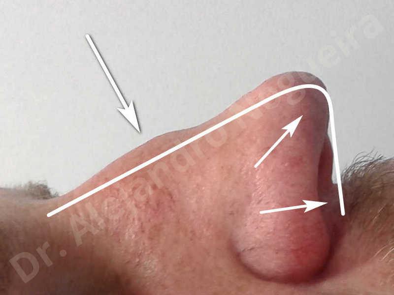 Alar flaring,Alar rim retraction,Asymmetric nose,Asymmetric tip,Bifid columella,Bifid tip,Broad dorsum,Broad nose,Concave lateral cruras,Congenital nose,Crooked nose,Crooked septum,Crooked tip,Dorsum hump,Dorsum ridges,Droopy tip,Failed osteotomies,Flat dorsum,Irregular dorsum,Large alar cartilages,Large nose,Large nostrils,Large sills,Nasal fibrosis,Nasal valve collapse,Overprojected tip,Pinched middle vault,Pinched nose,Plunging tip deformity,Poorly defined tip,Poorly supported tip,Posttraumatic nose,Rhomboid dorsum,Saddle nose deformity,Short septum,Short upper lateral cartilages,Sunken columella,Sunken supratip,Thick skin nose,Tip bossae,Underprojected tip,Alar base resection alarplasty,Columella strut graft,Dorsum hump resection,Dorsum regularization,Extended columella strut graft,Intercrural columella plasty sutures,Interdomal tip plasty sutures,Lateral cruras cephalic resection,Lateral cruras plasty sutures,Lateral cruras repositioning,Lateral cruras shortening resection,Medial cruras shortening resection,Nasal bones osteotomies,Nostril sill resection,Onlay dorsum graft,Onlay supratip graft,Open approach incision,Rib cartilage graft harvesting,Septocolumella graft,Septum caudal extension graft,Septum replacement graft,Spreader graft,Temporalis fascia graft harvesting,Tip defatting,Transdomal tip plasty sutures,Triangular cartilages caudal extension graft - photo 6