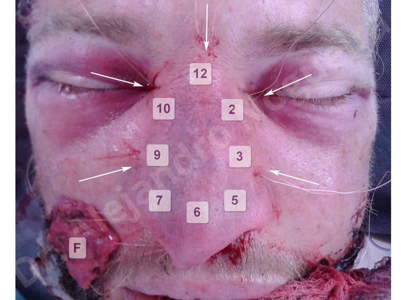 Alar flaring,Alar rim retraction,Asymmetric nose,Asymmetric tip,Bifid columella,Bifid tip,Broad dorsum,Broad nose,Concave lateral cruras,Congenital nose,Crooked nose,Crooked septum,Crooked tip,Dorsum hump,Dorsum ridges,Droopy tip,Failed osteotomies,Flat dorsum,Irregular dorsum,Large alar cartilages,Large nose,Large nostrils,Large sills,Nasal fibrosis,Nasal valve collapse,Overprojected tip,Pinched middle vault,Pinched nose,Plunging tip deformity,Poorly defined tip,Poorly supported tip,Posttraumatic nose,Rhomboid dorsum,Saddle nose deformity,Short septum,Short upper lateral cartilages,Sunken columella,Sunken supratip,Thick skin nose,Tip bossae,Underprojected tip,Alar base resection alarplasty,Columella strut graft,Dorsum hump resection,Dorsum regularization,Extended columella strut graft,Intercrural columella plasty sutures,Interdomal tip plasty sutures,Lateral cruras cephalic resection,Lateral cruras plasty sutures,Lateral cruras repositioning,Lateral cruras shortening resection,Medial cruras shortening resection,Nasal bones osteotomies,Nostril sill resection,Onlay dorsum graft,Onlay supratip graft,Open approach incision,Rib cartilage graft harvesting,Septocolumella graft,Septum caudal extension graft,Septum replacement graft,Spreader graft,Temporalis fascia graft harvesting,Tip defatting,Transdomal tip plasty sutures,Triangular cartilages caudal extension graft - photo 69