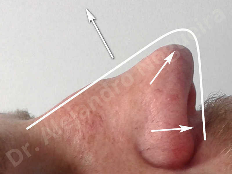 Alar flaring,Alar rim retraction,Asymmetric nose,Asymmetric tip,Bifid columella,Bifid tip,Broad dorsum,Broad nose,Concave lateral cruras,Congenital nose,Crooked nose,Crooked septum,Crooked tip,Dorsum hump,Dorsum ridges,Droopy tip,Failed osteotomies,Flat dorsum,Irregular dorsum,Large alar cartilages,Large nose,Large nostrils,Large sills,Nasal fibrosis,Nasal valve collapse,Overprojected tip,Pinched middle vault,Pinched nose,Plunging tip deformity,Poorly defined tip,Poorly supported tip,Posttraumatic nose,Rhomboid dorsum,Saddle nose deformity,Short septum,Short upper lateral cartilages,Sunken columella,Sunken supratip,Thick skin nose,Tip bossae,Underprojected tip,Alar base resection alarplasty,Columella strut graft,Dorsum hump resection,Dorsum regularization,Extended columella strut graft,Intercrural columella plasty sutures,Interdomal tip plasty sutures,Lateral cruras cephalic resection,Lateral cruras plasty sutures,Lateral cruras repositioning,Lateral cruras shortening resection,Medial cruras shortening resection,Nasal bones osteotomies,Nostril sill resection,Onlay dorsum graft,Onlay supratip graft,Open approach incision,Rib cartilage graft harvesting,Septocolumella graft,Septum caudal extension graft,Septum replacement graft,Spreader graft,Temporalis fascia graft harvesting,Tip defatting,Transdomal tip plasty sutures,Triangular cartilages caudal extension graft - photo 7