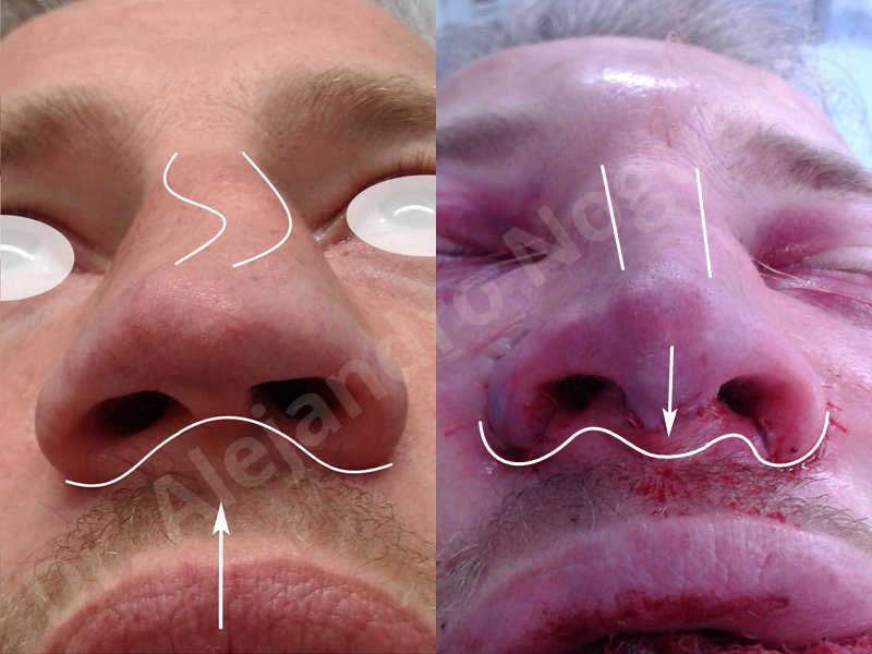 Alar flaring,Alar rim retraction,Asymmetric nose,Asymmetric tip,Bifid columella,Bifid tip,Broad dorsum,Broad nose,Concave lateral cruras,Congenital nose,Crooked nose,Crooked septum,Crooked tip,Dorsum hump,Dorsum ridges,Droopy tip,Failed osteotomies,Flat dorsum,Irregular dorsum,Large alar cartilages,Large nose,Large nostrils,Large sills,Nasal fibrosis,Nasal valve collapse,Overprojected tip,Pinched middle vault,Pinched nose,Plunging tip deformity,Poorly defined tip,Poorly supported tip,Posttraumatic nose,Rhomboid dorsum,Saddle nose deformity,Short septum,Short upper lateral cartilages,Sunken columella,Sunken supratip,Thick skin nose,Tip bossae,Underprojected tip,Alar base resection alarplasty,Columella strut graft,Dorsum hump resection,Dorsum regularization,Extended columella strut graft,Intercrural columella plasty sutures,Interdomal tip plasty sutures,Lateral cruras cephalic resection,Lateral cruras plasty sutures,Lateral cruras repositioning,Lateral cruras shortening resection,Medial cruras shortening resection,Nasal bones osteotomies,Nostril sill resection,Onlay dorsum graft,Onlay supratip graft,Open approach incision,Rib cartilage graft harvesting,Septocolumella graft,Septum caudal extension graft,Septum replacement graft,Spreader graft,Temporalis fascia graft harvesting,Tip defatting,Transdomal tip plasty sutures,Triangular cartilages caudal extension graft - photo 86