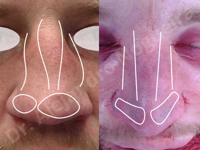 Alar flaring,Alar rim retraction,Asymmetric nose,Asymmetric tip,Bifid columella,Bifid tip,Broad dorsum,Broad nose,Concave lateral cruras,Congenital nose,Crooked nose,Crooked septum,Crooked tip,Dorsum hump,Dorsum ridges,Droopy tip,Failed osteotomies,Flat dorsum,Irregular dorsum,Large alar cartilages,Large nose,Large nostrils,Large sills,Nasal fibrosis,Nasal valve collapse,Overprojected tip,Pinched middle vault,Pinched nose,Plunging tip deformity,Poorly defined tip,Poorly supported tip,Posttraumatic nose,Rhomboid dorsum,Saddle nose deformity,Short septum,Short upper lateral cartilages,Sunken columella,Sunken supratip,Thick skin nose,Tip bossae,Underprojected tip,Alar base resection alarplasty,Columella strut graft,Dorsum hump resection,Dorsum regularization,Extended columella strut graft,Intercrural columella plasty sutures,Interdomal tip plasty sutures,Lateral cruras cephalic resection,Lateral cruras plasty sutures,Lateral cruras repositioning,Lateral cruras shortening resection,Medial cruras shortening resection,Nasal bones osteotomies,Nostril sill resection,Onlay dorsum graft,Onlay supratip graft,Open approach incision,Rib cartilage graft harvesting,Septocolumella graft,Septum caudal extension graft,Septum replacement graft,Spreader graft,Temporalis fascia graft harvesting,Tip defatting,Transdomal tip plasty sutures,Triangular cartilages caudal extension graft - photo 89