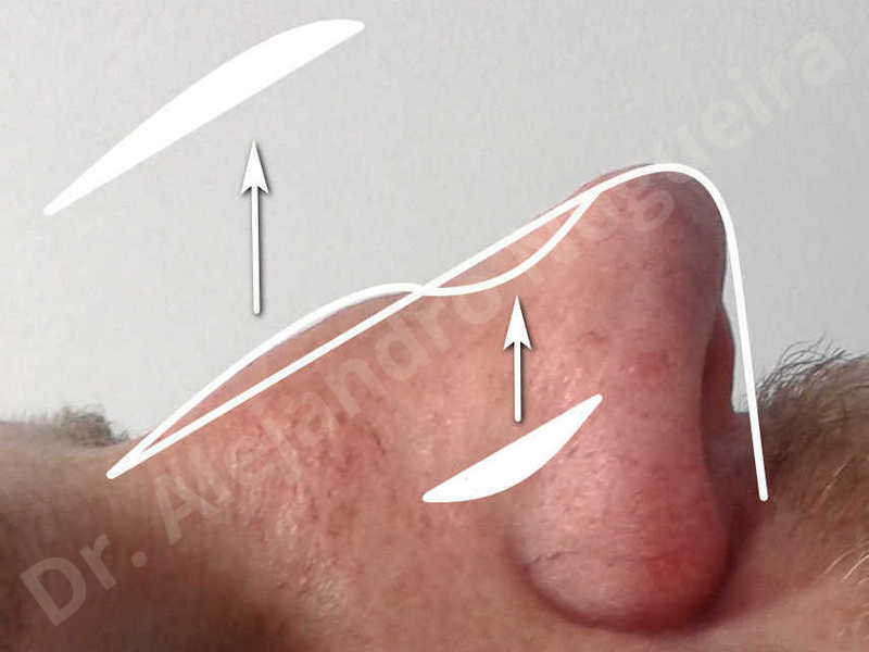 Alar flaring,Alar rim retraction,Asymmetric nose,Asymmetric tip,Bifid columella,Bifid tip,Broad dorsum,Broad nose,Concave lateral cruras,Congenital nose,Crooked nose,Crooked septum,Crooked tip,Dorsum hump,Dorsum ridges,Droopy tip,Failed osteotomies,Flat dorsum,Irregular dorsum,Large alar cartilages,Large nose,Large nostrils,Large sills,Nasal fibrosis,Nasal valve collapse,Overprojected tip,Pinched middle vault,Pinched nose,Plunging tip deformity,Poorly defined tip,Poorly supported tip,Posttraumatic nose,Rhomboid dorsum,Saddle nose deformity,Short septum,Short upper lateral cartilages,Sunken columella,Sunken supratip,Thick skin nose,Tip bossae,Underprojected tip,Alar base resection alarplasty,Columella strut graft,Dorsum hump resection,Dorsum regularization,Extended columella strut graft,Intercrural columella plasty sutures,Interdomal tip plasty sutures,Lateral cruras cephalic resection,Lateral cruras plasty sutures,Lateral cruras repositioning,Lateral cruras shortening resection,Medial cruras shortening resection,Nasal bones osteotomies,Nostril sill resection,Onlay dorsum graft,Onlay supratip graft,Open approach incision,Rib cartilage graft harvesting,Septocolumella graft,Septum caudal extension graft,Septum replacement graft,Spreader graft,Temporalis fascia graft harvesting,Tip defatting,Transdomal tip plasty sutures,Triangular cartilages caudal extension graft - photo 9