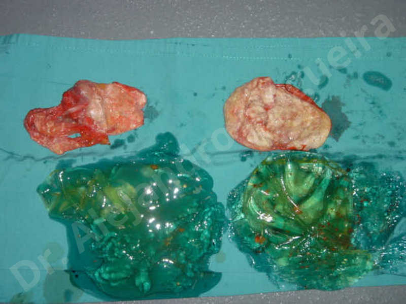 Asymmetric breasts,Breast implants capsular contracture,Breast implants capsule calcification,Breast implants displacement malposition,Breast implants riding too high,Breast implants visibility palpability,Breast tissue necrosis,Broken breast implants,Cross eyed breasts,Cross eyed breasts implants,Lateral breasts,Mildly saggy droopy breasts,Moderately saggy droopy breasts,Too far apart wide cleavage breast implants,Too far apart wide cleavage breasts,Too narrow breast implants,Waterfall effect breast implants,Capsulectomy - photo 2