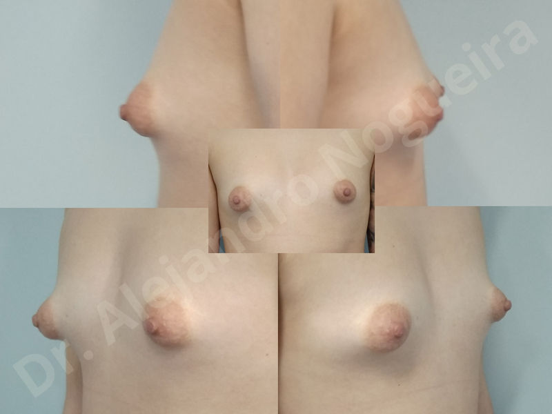 Asymmetric breasts,Breast implants animation muscle flex deformity,Breast implants capsular contracture,Breast implants displacement malposition,Breast implants double bubble deformity,Breast implants excessive movement,Breast implants riding too high,Breast implants side boob,Breast implants visibility palpability,Cross eyed breasts,Cross eyed breasts implants,Empty breasts,Extremely large breasts,Extremely saggy droopy breasts,Large areolas,Lateral breasts,Mildly large breasts,Mildly saggy droopy breasts,Moderately large breasts,Moderately saggy droopy breasts,Narrow breasts,Pendulous breasts,Pigeon chest,Severely large breasts,Severely saggy droopy breasts,Skinny breasts,Slightly large breasts,Slightly saggy droopy breasts,Small breasts,Sunken chest,Too far apart wide cleavage breast implants,Too far apart wide cleavage breasts,Too narrow breast implants,Too wide breast implants,Tuberous breasts,Waterfall effect breast implants,Wide breasts,Anatomical shape,Anchor incision,Areola reduction,Capsulectomy,Circumareolar incision,Dual plane pocket,Inframammary incision,Internal bra capsulorrhaphy,Lower hemi periareolar incision,Round shape,Subfascial pocket plane,Tuberous mammoplasty - photo 114