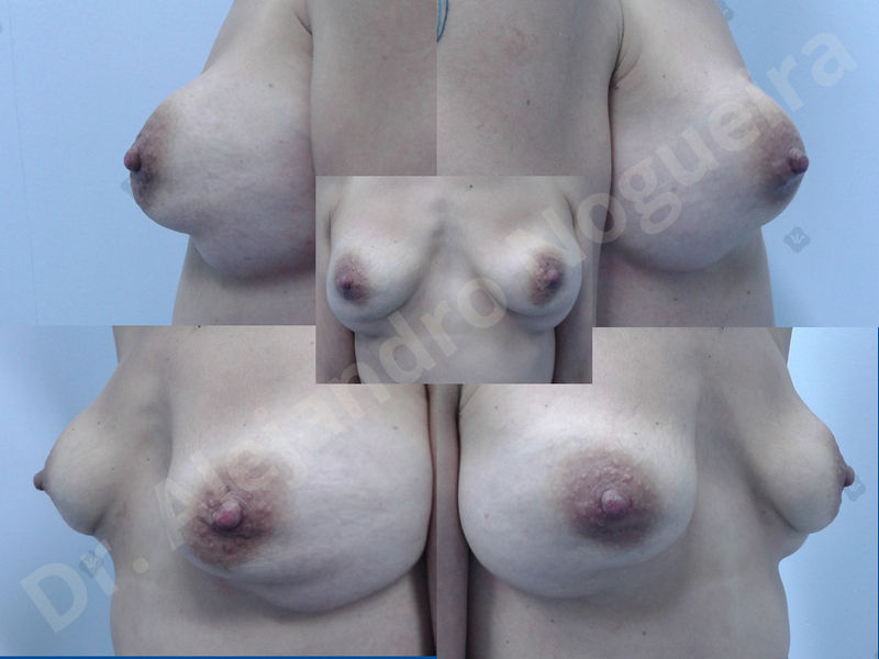 Asymmetric breasts,Breast implants animation muscle flex deformity,Breast implants capsular contracture,Breast implants displacement malposition,Breast implants double bubble deformity,Breast implants excessive movement,Breast implants riding too high,Breast implants side boob,Breast implants visibility palpability,Cross eyed breasts,Cross eyed breasts implants,Empty breasts,Extremely large breasts,Extremely saggy droopy breasts,Large areolas,Lateral breasts,Mildly large breasts,Mildly saggy droopy breasts,Moderately large breasts,Moderately saggy droopy breasts,Narrow breasts,Pendulous breasts,Pigeon chest,Severely large breasts,Severely saggy droopy breasts,Skinny breasts,Slightly large breasts,Slightly saggy droopy breasts,Small breasts,Sunken chest,Too far apart wide cleavage breast implants,Too far apart wide cleavage breasts,Too narrow breast implants,Too wide breast implants,Tuberous breasts,Waterfall effect breast implants,Wide breasts,Anatomical shape,Anchor incision,Areola reduction,Capsulectomy,Circumareolar incision,Dual plane pocket,Inframammary incision,Internal bra capsulorrhaphy,Lower hemi periareolar incision,Round shape,Subfascial pocket plane,Tuberous mammoplasty - photo 12
