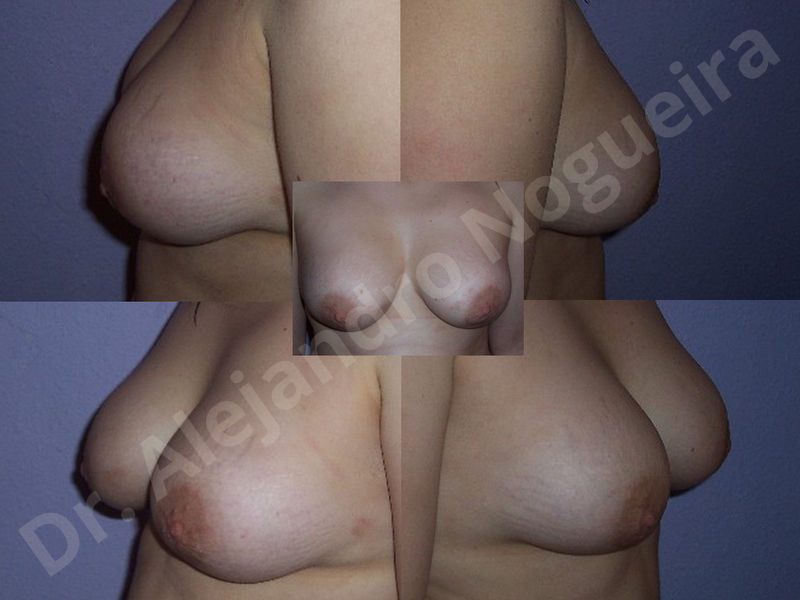 Asymmetric breasts,Breast implants animation muscle flex deformity,Breast implants capsular contracture,Breast implants displacement malposition,Breast implants double bubble deformity,Breast implants excessive movement,Breast implants riding too high,Breast implants side boob,Breast implants visibility palpability,Cross eyed breasts,Cross eyed breasts implants,Empty breasts,Extremely large breasts,Extremely saggy droopy breasts,Large areolas,Lateral breasts,Mildly large breasts,Mildly saggy droopy breasts,Moderately large breasts,Moderately saggy droopy breasts,Narrow breasts,Pendulous breasts,Pigeon chest,Severely large breasts,Severely saggy droopy breasts,Skinny breasts,Slightly large breasts,Slightly saggy droopy breasts,Small breasts,Sunken chest,Too far apart wide cleavage breast implants,Too far apart wide cleavage breasts,Too narrow breast implants,Too wide breast implants,Tuberous breasts,Waterfall effect breast implants,Wide breasts,Anatomical shape,Anchor incision,Areola reduction,Capsulectomy,Circumareolar incision,Dual plane pocket,Inframammary incision,Internal bra capsulorrhaphy,Lower hemi periareolar incision,Round shape,Subfascial pocket plane,Tuberous mammoplasty - photo 128