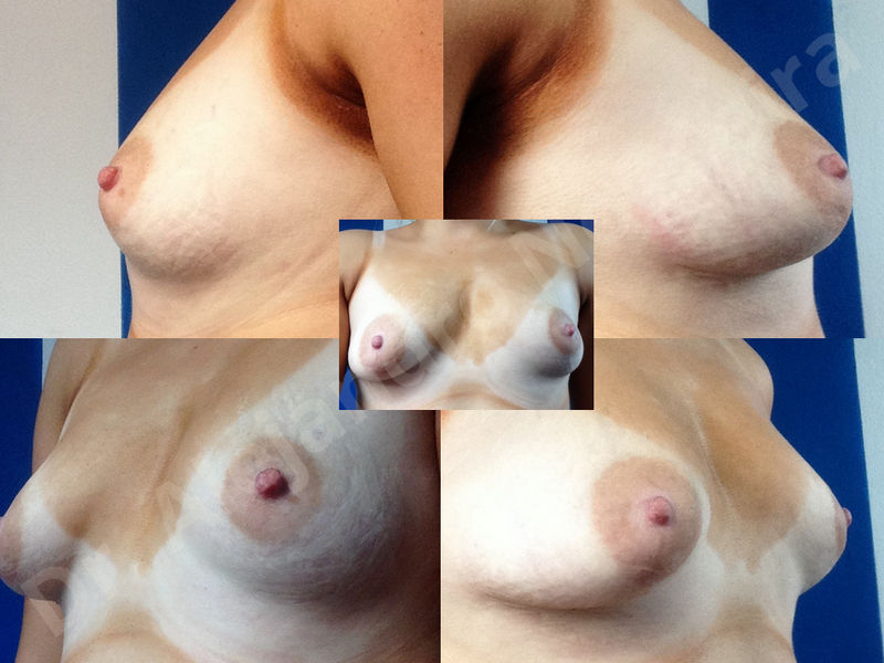 Asymmetric breasts,Breast implants animation muscle flex deformity,Breast implants capsular contracture,Breast implants displacement malposition,Breast implants double bubble deformity,Breast implants excessive movement,Breast implants riding too high,Breast implants side boob,Breast implants visibility palpability,Cross eyed breasts,Cross eyed breasts implants,Empty breasts,Extremely large breasts,Extremely saggy droopy breasts,Large areolas,Lateral breasts,Mildly large breasts,Mildly saggy droopy breasts,Moderately large breasts,Moderately saggy droopy breasts,Narrow breasts,Pendulous breasts,Pigeon chest,Severely large breasts,Severely saggy droopy breasts,Skinny breasts,Slightly large breasts,Slightly saggy droopy breasts,Small breasts,Sunken chest,Too far apart wide cleavage breast implants,Too far apart wide cleavage breasts,Too narrow breast implants,Too wide breast implants,Tuberous breasts,Waterfall effect breast implants,Wide breasts,Anatomical shape,Anchor incision,Areola reduction,Capsulectomy,Circumareolar incision,Dual plane pocket,Inframammary incision,Internal bra capsulorrhaphy,Lower hemi periareolar incision,Round shape,Subfascial pocket plane,Tuberous mammoplasty - photo 129