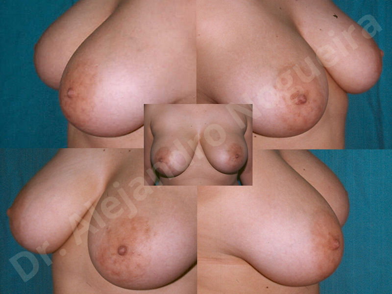 Asymmetric breasts,Breast implants animation muscle flex deformity,Breast implants capsular contracture,Breast implants displacement malposition,Breast implants double bubble deformity,Breast implants excessive movement,Breast implants riding too high,Breast implants side boob,Breast implants visibility palpability,Cross eyed breasts,Cross eyed breasts implants,Empty breasts,Extremely large breasts,Extremely saggy droopy breasts,Large areolas,Lateral breasts,Mildly large breasts,Mildly saggy droopy breasts,Moderately large breasts,Moderately saggy droopy breasts,Narrow breasts,Pendulous breasts,Pigeon chest,Severely large breasts,Severely saggy droopy breasts,Skinny breasts,Slightly large breasts,Slightly saggy droopy breasts,Small breasts,Sunken chest,Too far apart wide cleavage breast implants,Too far apart wide cleavage breasts,Too narrow breast implants,Too wide breast implants,Tuberous breasts,Waterfall effect breast implants,Wide breasts,Anatomical shape,Anchor incision,Areola reduction,Capsulectomy,Circumareolar incision,Dual plane pocket,Inframammary incision,Internal bra capsulorrhaphy,Lower hemi periareolar incision,Round shape,Subfascial pocket plane,Tuberous mammoplasty - photo 138