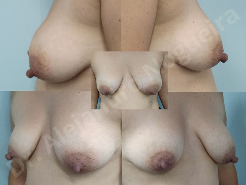Asymmetric breasts,Breast implants animation muscle flex deformity,Breast implants capsular contracture,Breast implants displacement malposition,Breast implants double bubble deformity,Breast implants excessive movement,Breast implants riding too high,Breast implants side boob,Breast implants visibility palpability,Cross eyed breasts,Cross eyed breasts implants,Empty breasts,Extremely large breasts,Extremely saggy droopy breasts,Large areolas,Lateral breasts,Mildly large breasts,Mildly saggy droopy breasts,Moderately large breasts,Moderately saggy droopy breasts,Narrow breasts,Pendulous breasts,Pigeon chest,Severely large breasts,Severely saggy droopy breasts,Skinny breasts,Slightly large breasts,Slightly saggy droopy breasts,Small breasts,Sunken chest,Too far apart wide cleavage breast implants,Too far apart wide cleavage breasts,Too narrow breast implants,Too wide breast implants,Tuberous breasts,Waterfall effect breast implants,Wide breasts,Anatomical shape,Anchor incision,Areola reduction,Capsulectomy,Circumareolar incision,Dual plane pocket,Inframammary incision,Internal bra capsulorrhaphy,Lower hemi periareolar incision,Round shape,Subfascial pocket plane,Tuberous mammoplasty - photo 141