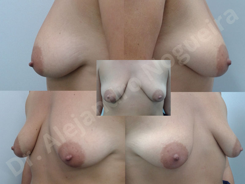 Asymmetric breasts,Breast implants animation muscle flex deformity,Breast implants capsular contracture,Breast implants displacement malposition,Breast implants double bubble deformity,Breast implants excessive movement,Breast implants riding too high,Breast implants side boob,Breast implants visibility palpability,Cross eyed breasts,Cross eyed breasts implants,Empty breasts,Extremely large breasts,Extremely saggy droopy breasts,Large areolas,Lateral breasts,Mildly large breasts,Mildly saggy droopy breasts,Moderately large breasts,Moderately saggy droopy breasts,Narrow breasts,Pendulous breasts,Pigeon chest,Severely large breasts,Severely saggy droopy breasts,Skinny breasts,Slightly large breasts,Slightly saggy droopy breasts,Small breasts,Sunken chest,Too far apart wide cleavage breast implants,Too far apart wide cleavage breasts,Too narrow breast implants,Too wide breast implants,Tuberous breasts,Waterfall effect breast implants,Wide breasts,Anatomical shape,Anchor incision,Areola reduction,Capsulectomy,Circumareolar incision,Dual plane pocket,Inframammary incision,Internal bra capsulorrhaphy,Lower hemi periareolar incision,Round shape,Subfascial pocket plane,Tuberous mammoplasty - photo 147