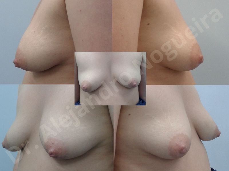 Asymmetric breasts,Breast implants animation muscle flex deformity,Breast implants capsular contracture,Breast implants displacement malposition,Breast implants double bubble deformity,Breast implants excessive movement,Breast implants riding too high,Breast implants side boob,Breast implants visibility palpability,Cross eyed breasts,Cross eyed breasts implants,Empty breasts,Extremely large breasts,Extremely saggy droopy breasts,Large areolas,Lateral breasts,Mildly large breasts,Mildly saggy droopy breasts,Moderately large breasts,Moderately saggy droopy breasts,Narrow breasts,Pendulous breasts,Pigeon chest,Severely large breasts,Severely saggy droopy breasts,Skinny breasts,Slightly large breasts,Slightly saggy droopy breasts,Small breasts,Sunken chest,Too far apart wide cleavage breast implants,Too far apart wide cleavage breasts,Too narrow breast implants,Too wide breast implants,Tuberous breasts,Waterfall effect breast implants,Wide breasts,Anatomical shape,Anchor incision,Areola reduction,Capsulectomy,Circumareolar incision,Dual plane pocket,Inframammary incision,Internal bra capsulorrhaphy,Lower hemi periareolar incision,Round shape,Subfascial pocket plane,Tuberous mammoplasty - photo 148