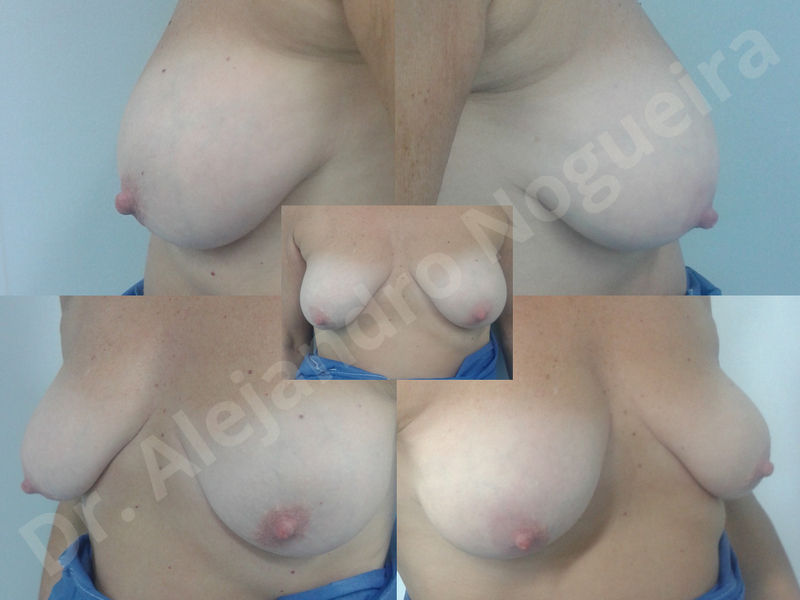 Asymmetric breasts,Breast implants animation muscle flex deformity,Breast implants capsular contracture,Breast implants displacement malposition,Breast implants double bubble deformity,Breast implants excessive movement,Breast implants riding too high,Breast implants side boob,Breast implants visibility palpability,Cross eyed breasts,Cross eyed breasts implants,Empty breasts,Extremely large breasts,Extremely saggy droopy breasts,Large areolas,Lateral breasts,Mildly large breasts,Mildly saggy droopy breasts,Moderately large breasts,Moderately saggy droopy breasts,Narrow breasts,Pendulous breasts,Pigeon chest,Severely large breasts,Severely saggy droopy breasts,Skinny breasts,Slightly large breasts,Slightly saggy droopy breasts,Small breasts,Sunken chest,Too far apart wide cleavage breast implants,Too far apart wide cleavage breasts,Too narrow breast implants,Too wide breast implants,Tuberous breasts,Waterfall effect breast implants,Wide breasts,Anatomical shape,Anchor incision,Areola reduction,Capsulectomy,Circumareolar incision,Dual plane pocket,Inframammary incision,Internal bra capsulorrhaphy,Lower hemi periareolar incision,Round shape,Subfascial pocket plane,Tuberous mammoplasty - photo 150