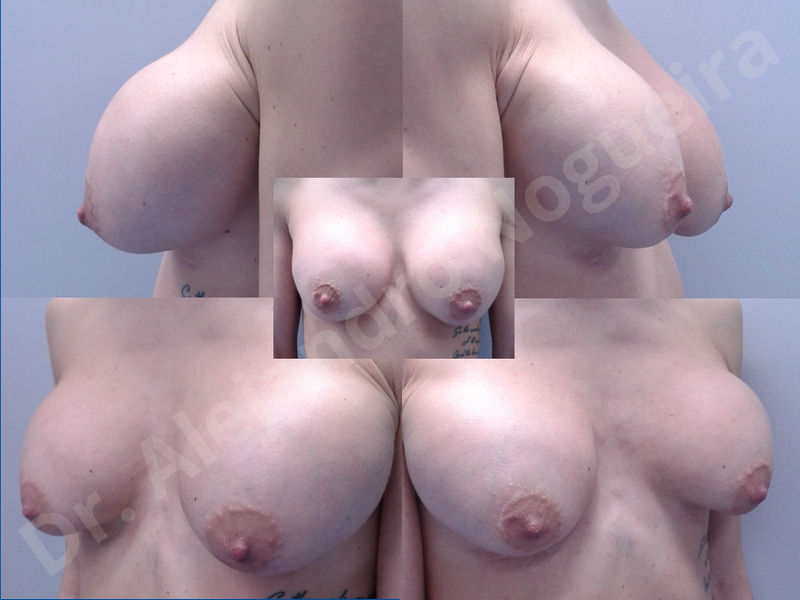 Asymmetric breasts,Breast implants animation muscle flex deformity,Breast implants capsular contracture,Breast implants displacement malposition,Breast implants double bubble deformity,Breast implants excessive movement,Breast implants riding too high,Breast implants side boob,Breast implants visibility palpability,Cross eyed breasts,Cross eyed breasts implants,Empty breasts,Extremely large breasts,Extremely saggy droopy breasts,Large areolas,Lateral breasts,Mildly large breasts,Mildly saggy droopy breasts,Moderately large breasts,Moderately saggy droopy breasts,Narrow breasts,Pendulous breasts,Pigeon chest,Severely large breasts,Severely saggy droopy breasts,Skinny breasts,Slightly large breasts,Slightly saggy droopy breasts,Small breasts,Sunken chest,Too far apart wide cleavage breast implants,Too far apart wide cleavage breasts,Too narrow breast implants,Too wide breast implants,Tuberous breasts,Waterfall effect breast implants,Wide breasts,Anatomical shape,Anchor incision,Areola reduction,Capsulectomy,Circumareolar incision,Dual plane pocket,Inframammary incision,Internal bra capsulorrhaphy,Lower hemi periareolar incision,Round shape,Subfascial pocket plane,Tuberous mammoplasty - photo 16