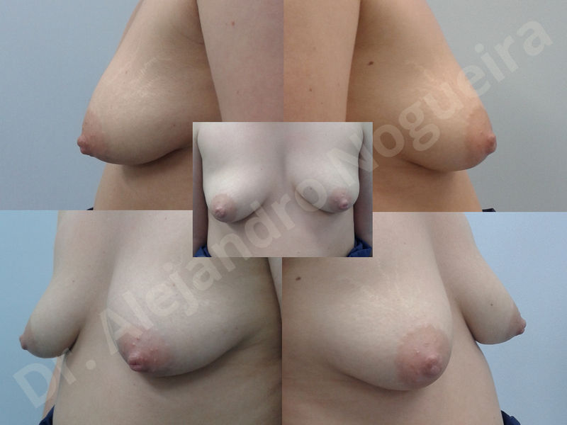 Asymmetric breasts,Breast implants animation muscle flex deformity,Breast implants capsular contracture,Breast implants displacement malposition,Breast implants double bubble deformity,Breast implants excessive movement,Breast implants riding too high,Breast implants side boob,Breast implants visibility palpability,Cross eyed breasts,Cross eyed breasts implants,Empty breasts,Extremely large breasts,Extremely saggy droopy breasts,Large areolas,Lateral breasts,Mildly large breasts,Mildly saggy droopy breasts,Moderately large breasts,Moderately saggy droopy breasts,Narrow breasts,Pendulous breasts,Pigeon chest,Severely large breasts,Severely saggy droopy breasts,Skinny breasts,Slightly large breasts,Slightly saggy droopy breasts,Small breasts,Sunken chest,Too far apart wide cleavage breast implants,Too far apart wide cleavage breasts,Too narrow breast implants,Too wide breast implants,Tuberous breasts,Waterfall effect breast implants,Wide breasts,Anatomical shape,Anchor incision,Areola reduction,Capsulectomy,Circumareolar incision,Dual plane pocket,Inframammary incision,Internal bra capsulorrhaphy,Lower hemi periareolar incision,Round shape,Subfascial pocket plane,Tuberous mammoplasty - photo 18