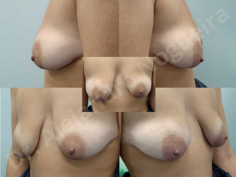 Asymmetric breasts,Breast implants animation muscle flex deformity,Breast implants capsular contracture,Breast implants displacement malposition,Breast implants double bubble deformity,Breast implants excessive movement,Breast implants riding too high,Breast implants side boob,Breast implants visibility palpability,Cross eyed breasts,Cross eyed breasts implants,Empty breasts,Extremely large breasts,Extremely saggy droopy breasts,Large areolas,Lateral breasts,Mildly large breasts,Mildly saggy droopy breasts,Moderately large breasts,Moderately saggy droopy breasts,Narrow breasts,Pendulous breasts,Pigeon chest,Severely large breasts,Severely saggy droopy breasts,Skinny breasts,Slightly large breasts,Slightly saggy droopy breasts,Small breasts,Sunken chest,Too far apart wide cleavage breast implants,Too far apart wide cleavage breasts,Too narrow breast implants,Too wide breast implants,Tuberous breasts,Waterfall effect breast implants,Wide breasts,Anatomical shape,Anchor incision,Areola reduction,Capsulectomy,Circumareolar incision,Dual plane pocket,Inframammary incision,Internal bra capsulorrhaphy,Lower hemi periareolar incision,Round shape,Subfascial pocket plane,Tuberous mammoplasty - photo 2